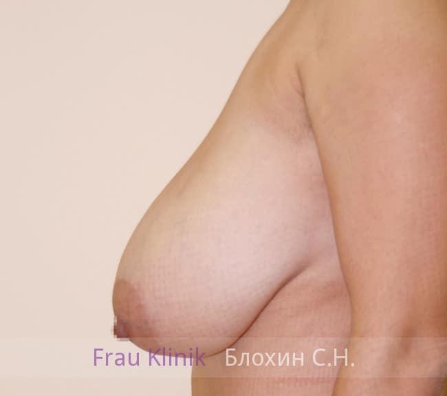 Пластика груди после родов 8