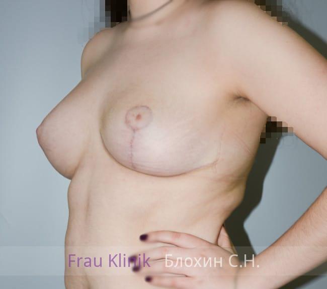 Пластика груди после родов 15