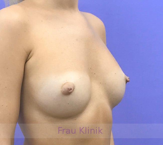 Удаление грудных имплантатов 6