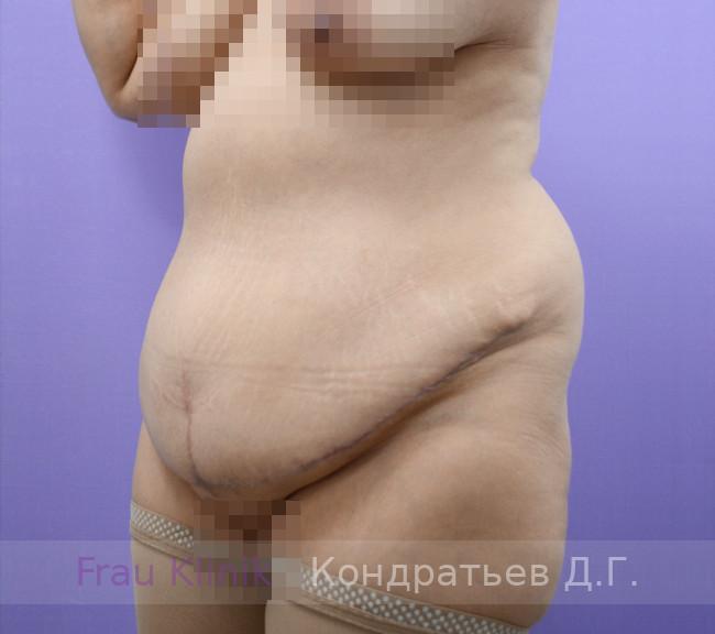 Жир на животе 13