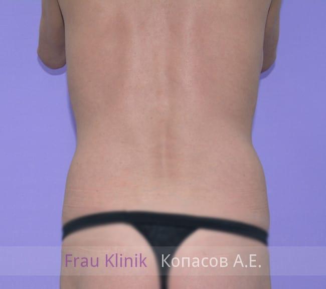 Липосакция спины 5