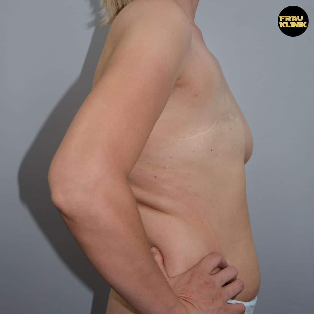 Рак груди — не приговор! 5