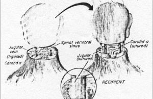 headtransplantbanner