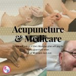 Does Medicare Cover Acupuncture?
