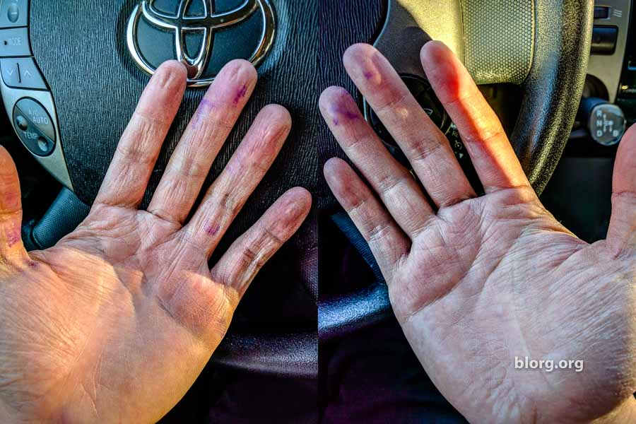 hands of a dishwasher