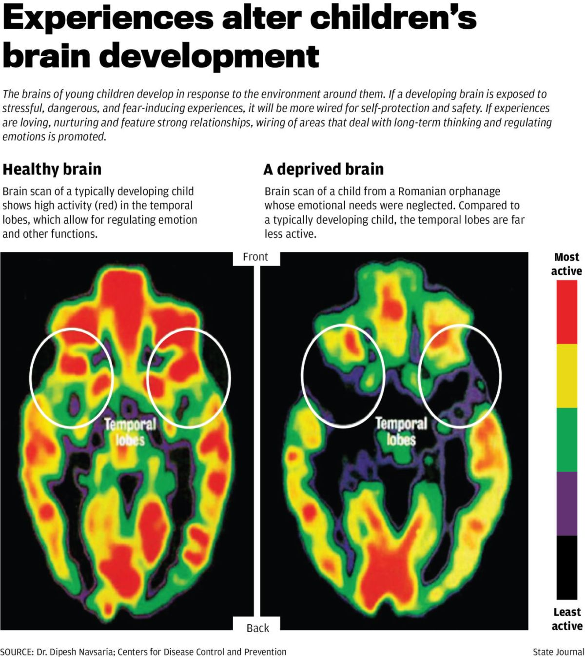 Left unaddressed, childhood trauma can weaken developing brain | Crime | madison