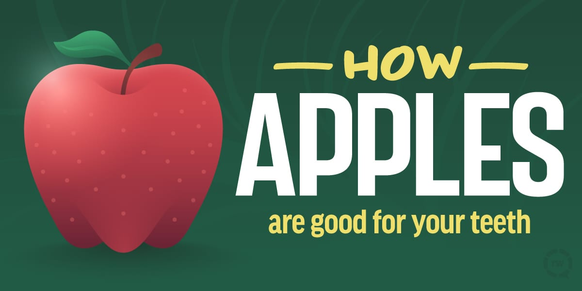 FAQs Rohnert Park, Blue Apple Dental Group
