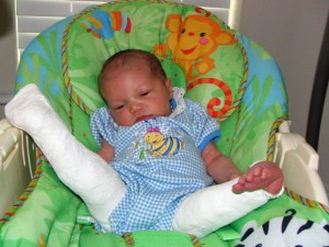 Addison as a baby showing her leg condition