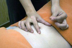 Free acupuncture, therapeutic massage and healthy lifestyle tips clinic @ Bakersville Community Health Clinic