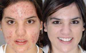 curing acne naturally