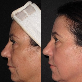 woman face before and after