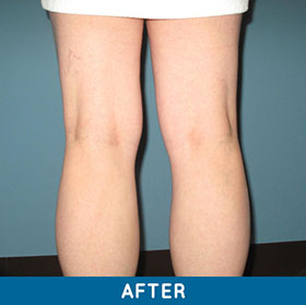 legs after