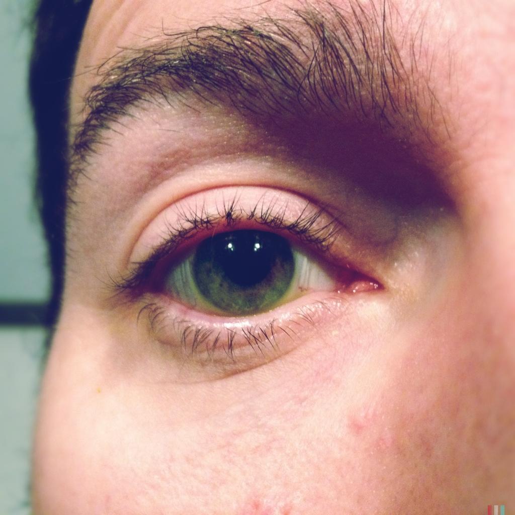 Lens.