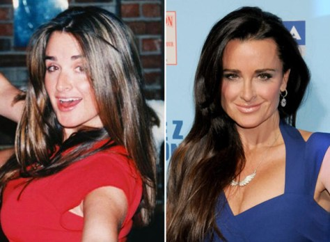 Kyle Richards' Glow up