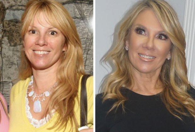 Ramona Singer before and after. Photo from RamonaSinger.com
