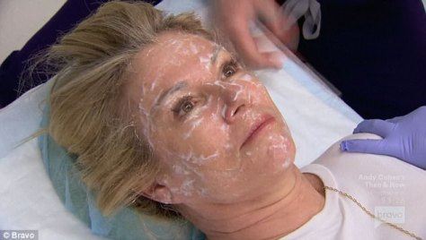 Ramona hates pain so she makes she to get plenty of numbing cream before any laser treatments!