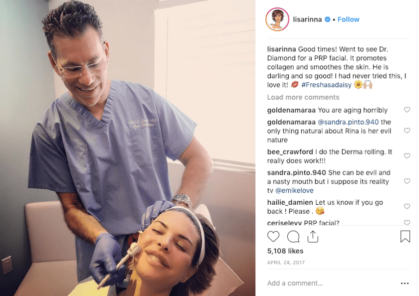 Lisa Rinna getting a Platelet Rich Plasma Facial with Dr. Diamond in Beverly HIlls