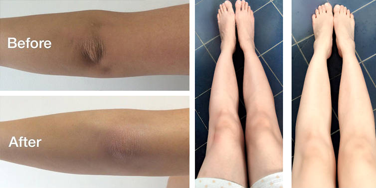 How To Get Rid Of Dark Knees And Elbows In 10 Days 4