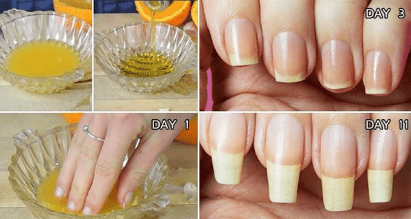 Longer Nails With These Quick And Easy Natural Home Remedies ...