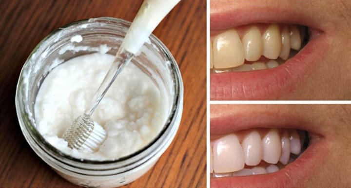 Homemade remedy to whiten your teeth 1