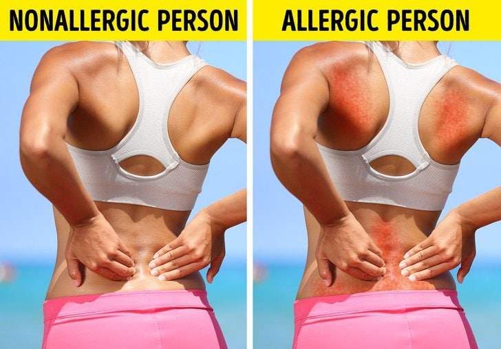 9 Bad Everyday Things That Could Be Allergic To Without Realizing It 7