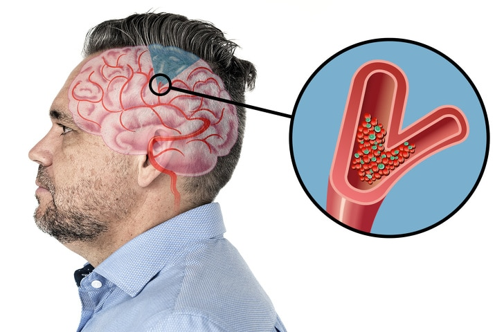 6 Warning Signs Of the Upcoming Stroke In Your Brain 7