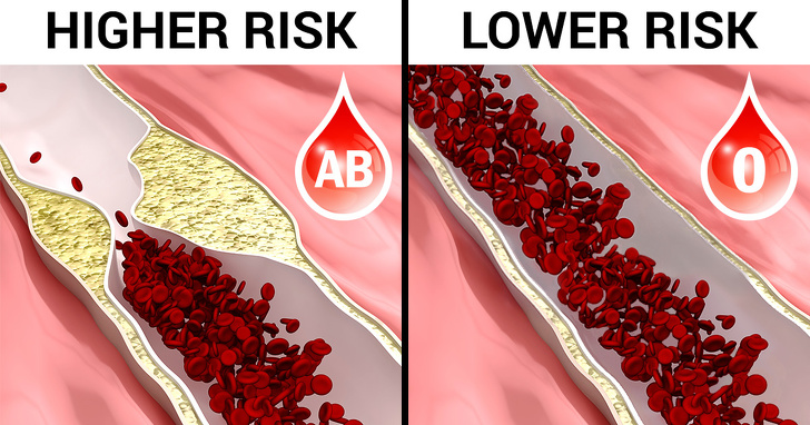 7 Best Facts Regarding Blood Type That Are Worth To Know 7