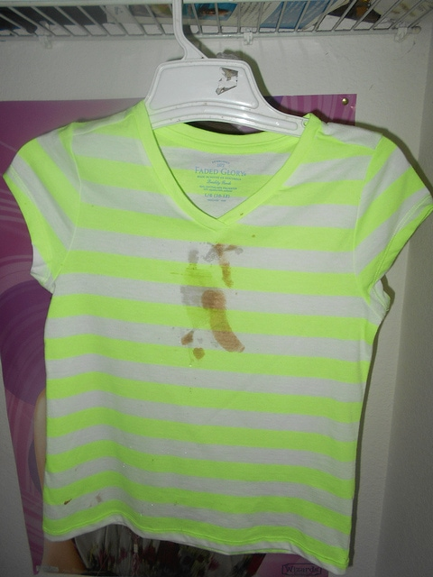 Top 5 Easy Ways To Remove The Stubborn Stains 6