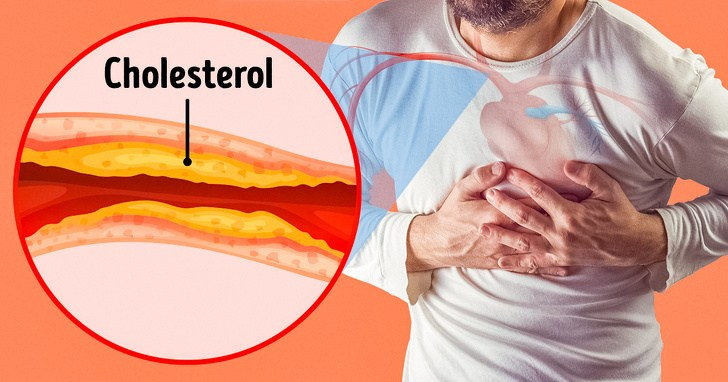 7 Severe Signs Of Damaged Arteries That We Generally Ignore 3
