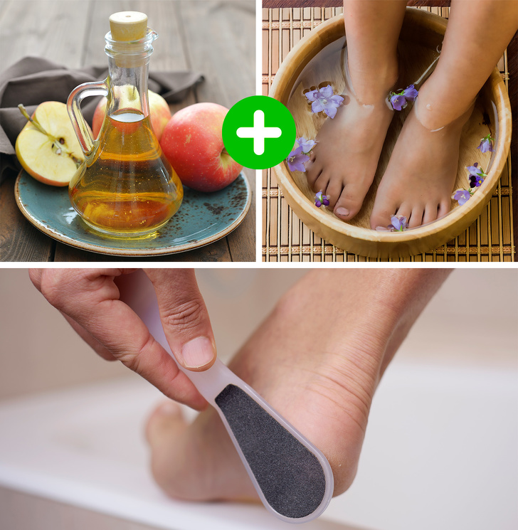 5 Best Ways To Heal The Cracked Skin 4