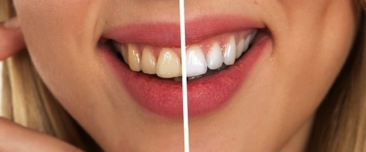 7 Best Ways You Can Prevent Tooth Decay And We Thank For Them 6
