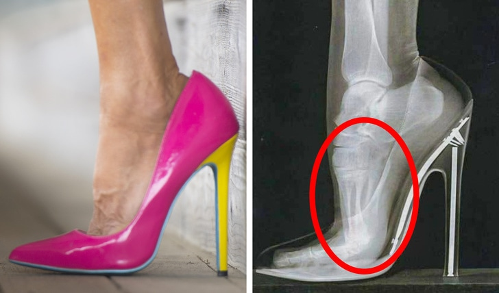 6 Types Of Shoes That Can Damage Your Body Too Badly 2