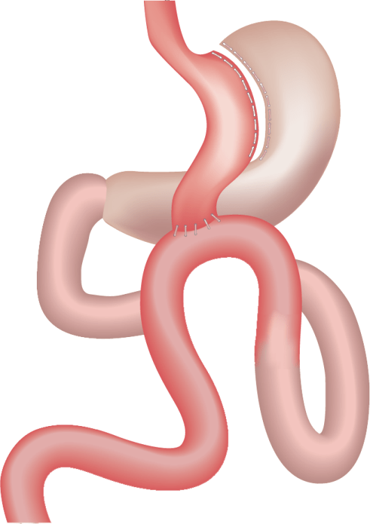 """Gastric bypass for weight loss diagram showing the reduce stomach """"pouch"""" and re-routed intestine."""