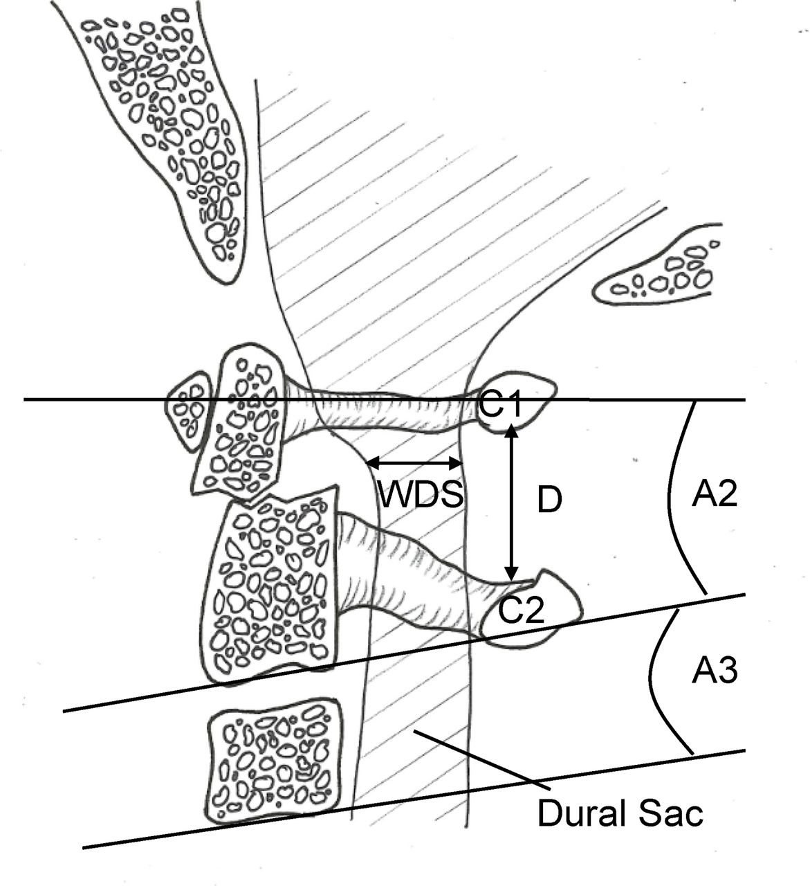 Cadaveric Study Of Movement In The Unstable Upper Cervical