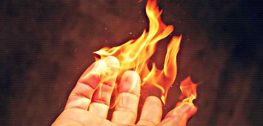 Ожоговые повреждения и ожоговая болезнь. Первая помощь при ожогах