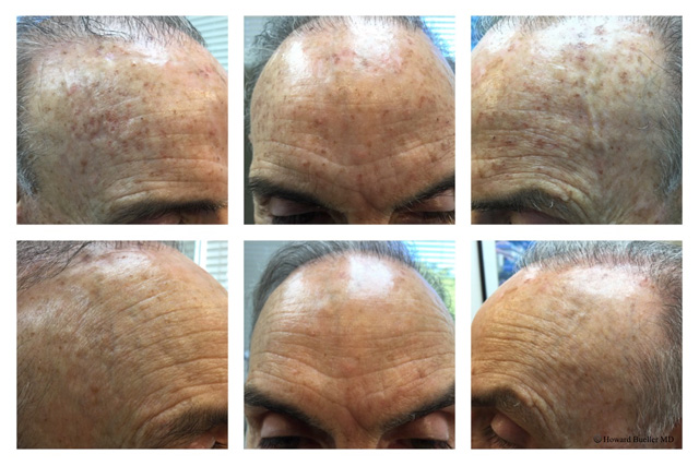 Brown spots 12 days after 1 treatment