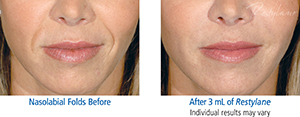 Restylane Injectables before and after