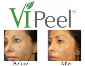 vi peel before and after