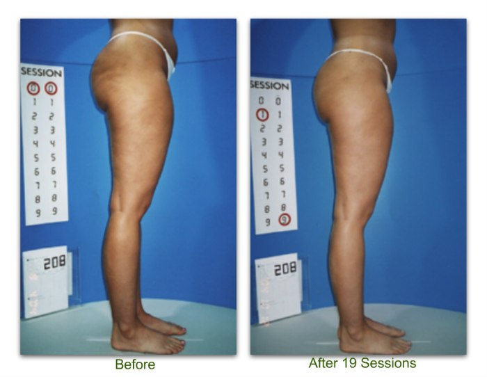 endermologie 2 before and after 19 sessions