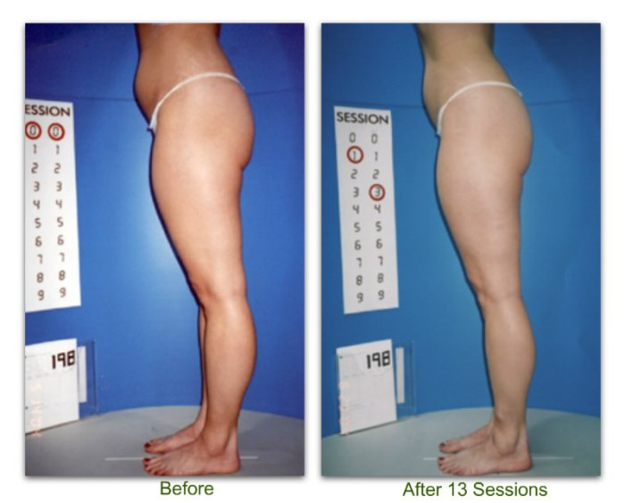 endermologie 8 before and after 13 sessions