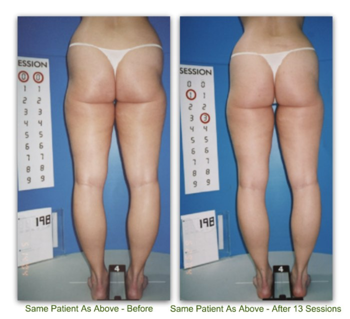 endermologie 8b before and after 13 sessions