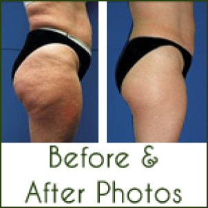 endermologie before after photos