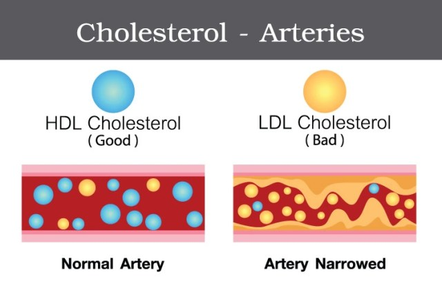 Two types of Cholesterol