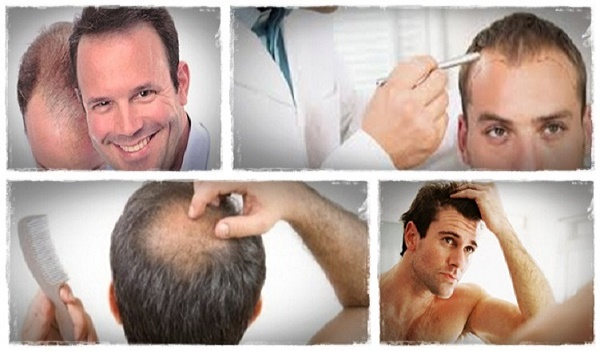 Provillus Review – hair loss treatment men and women