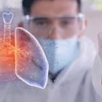 Pesquisas comprovam: xilitol previne infecções respiratórias como a pneumonia