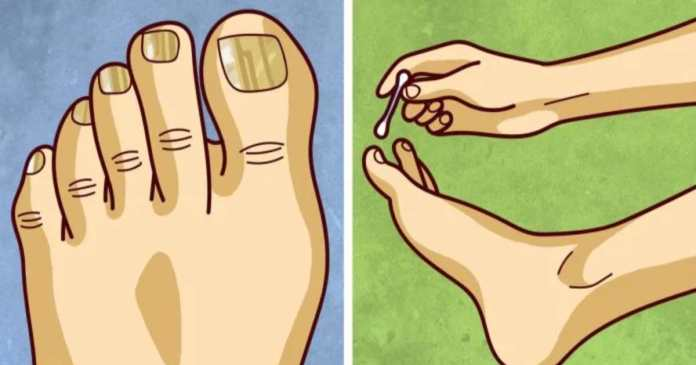 18 effective home remedies to cure toe nail fungus