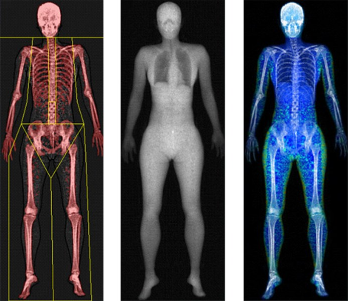 Dexa scan showing body fat
