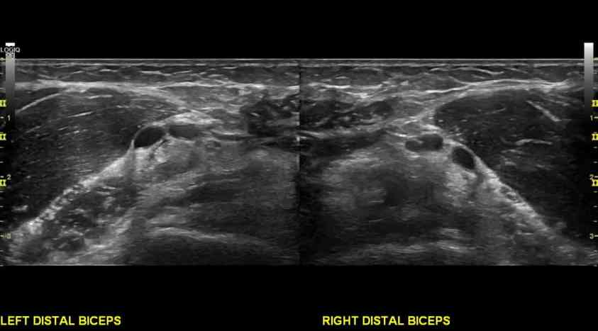 Anterior elbow pain: A case of partial tear of the distal ...
