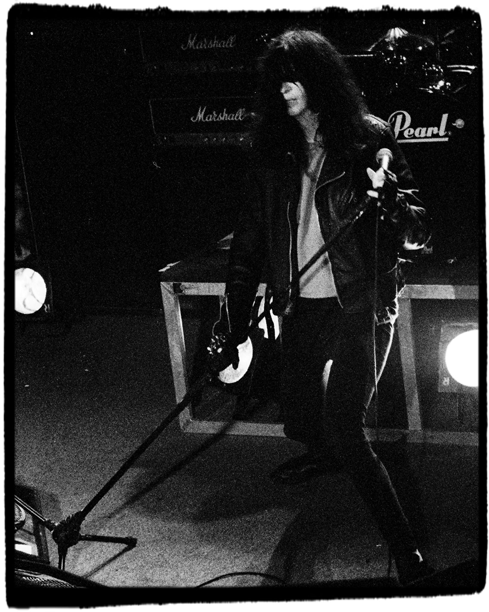Interesting fact: Joey Ramone was born with a parasitic twin growing out of his back