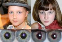 Picture of two images of faces (young girls), one real and one synthetic, with an analysis showing the real faces' has eyes with pupils that are round, and the fake one has pupils that are irregularly shaped